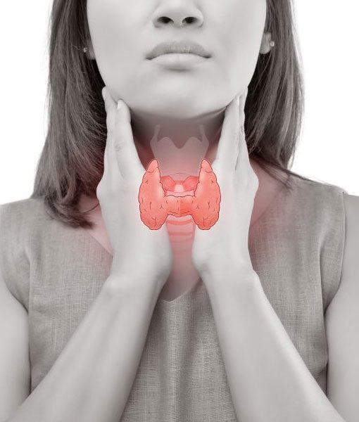 A Imagem Mostra Uma Mulher Com As Mãos No Pescoço E A Glândula Da Paratireoide Em Destaque.