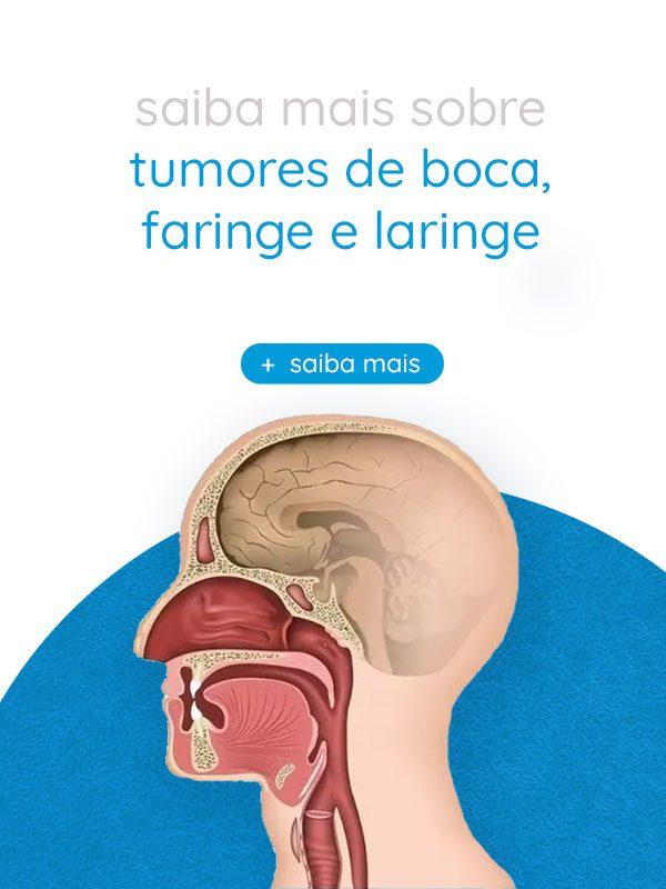 Tumores de boca, faringe e laringe | Dr. Arthur Vicentini CRM 154.086