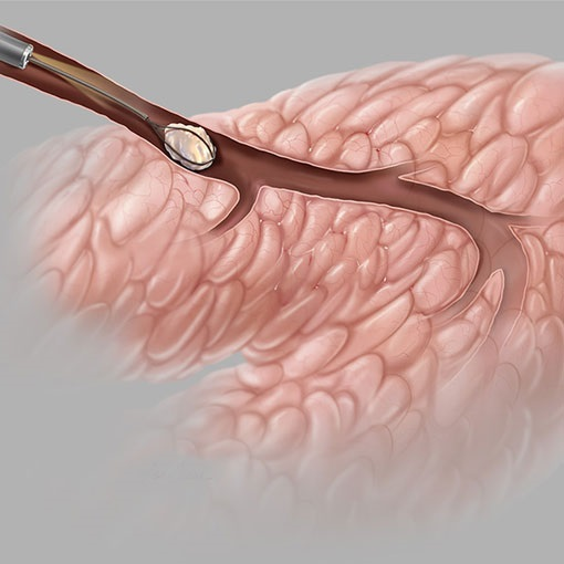 Sialoendoscopia   Dr. Arthur Vicentini Crm 154.086