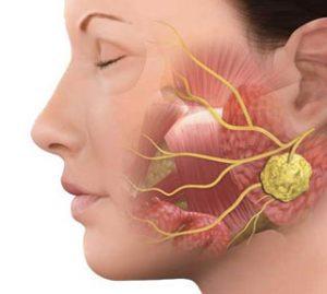 Glândulas Salivares   Dr. Arthur Vicentini CRM 154.086