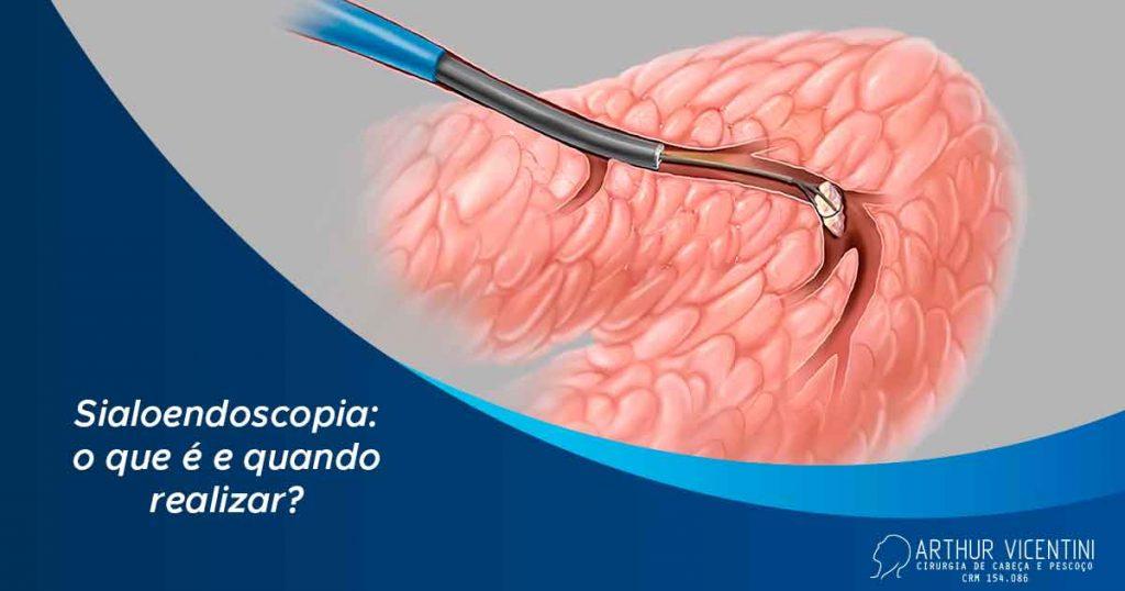 Sialoendoscopia Dr Arthur Vicentini Cirurgiao De Cabeca E Pescoco Fb