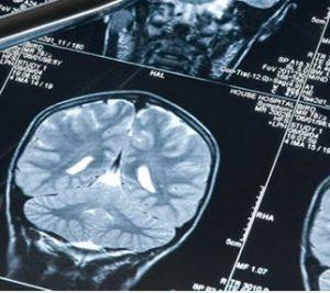 Tomografia   Dr. Arthur Vicentini CRM 154.086