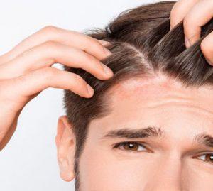 Tratamentos da face e couro cabeludo   Dr. Arthur Vicentini CRM 154.086
